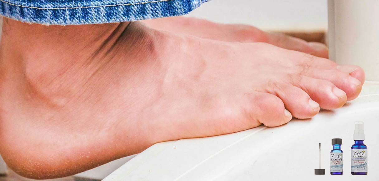 Over the counter toe fungus treatment